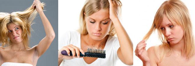caduta capelli rimedi